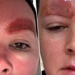 Woman Left With Horrific Infection After Getting Eyebrows Microbladed
