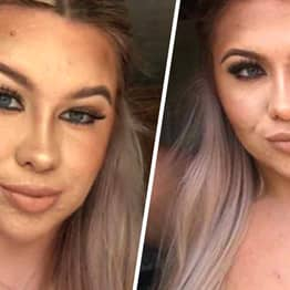 Student Won't Date For Fear Of Catfishing Guys Over Severe Acne