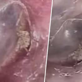 'Crawling Sensation' Turns Out To Be Spider Living Inside Man's Ear