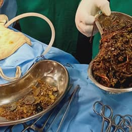 Doctors Remove £53k Worth Of Coins And Jewellery From Woman's Stomach