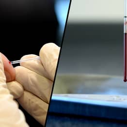 Blood Test Can Predict Risk Of Early Death, Researchers Claim