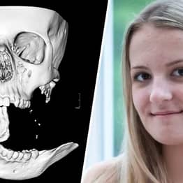 Teen Had To Catch Her Own Jaw After It Was Torn Off In Horse Riding Accident