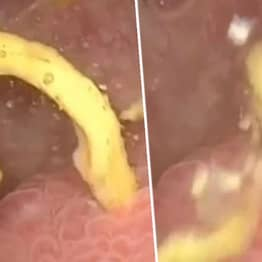 Woman's Poo Has Been Leaking From Large Intestine Into Her Bladder Due To Rare Disease
