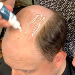 Hairdresser Transforms Bald Guys With Non-Surgical Hair Replacements