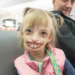 Little Girl Born With Half A Face Can Finally Smile After Pioneering Surgery