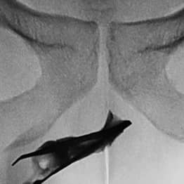 Man Had 3-Inch Long Tweezers Lodged In His Urethra For Four Years