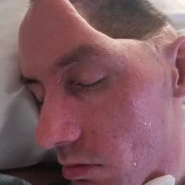 Dad Left Paralysed After Brutal Attack Leaves Him With Half A Skull And 'Sunken' Brain