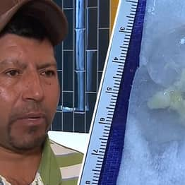 Texas Man Discovers Mystery Illness Was Caused By 10-Year-Old Tapeworm In Brain