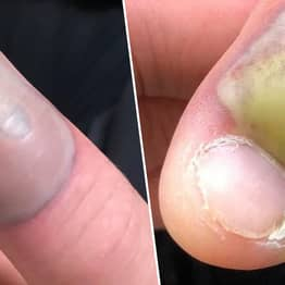 Woman Contracts Deadly Infection After Biting Nails