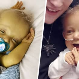 Devon Toddler With Rare Condition Is 'Always Smiling' Despite People's Nasty Comments