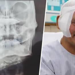 Rusty Knife Removed From Man's Head 26 Years After He Was Stabbed