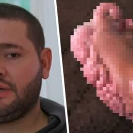 Man's 'Cauliflower Feet' Were So Painful He Wanted Them Amputated