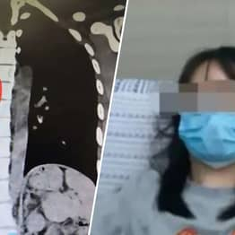 Doctors In China Remove Chicken Bone From Woman's Lungs After 14 Years