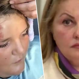 Woman Sues 12-Year-Old On Bike She Hit With Car Because It Got Scratched