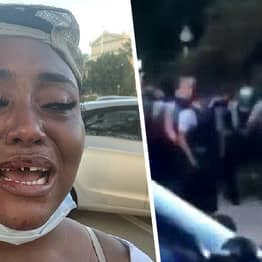 Chicago Police Knock Out Teeth Of Black Activist At Protest