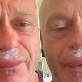 Ross Kemp Reveals Swollen Lips After Being Stung By Wasps