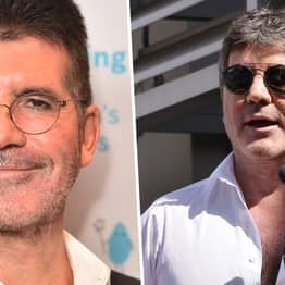 Simon Cowell Requires Surgery After Breaking His Back In Bike Accident In California
