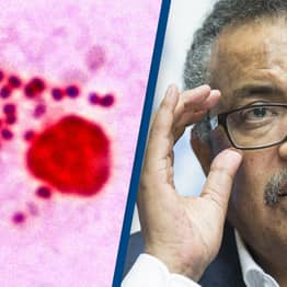 'Super Gonorrhoea' May Be On The Rise, WHO Warns