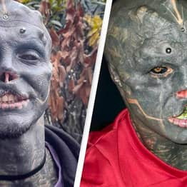 Man Has Top Lip Removed To Become 'Black Alien'