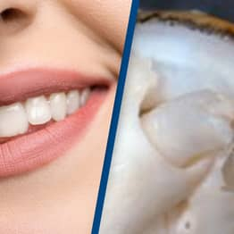 Scientists Develop New Drug That Can Regenerate Lost Teeth