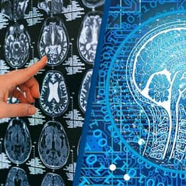 'World First' Brain Device Translates Thoughts Directly Onto Computer At More Than Double Previous Speed