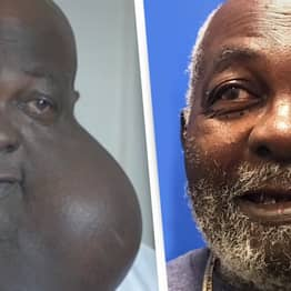 Doctor Removes 'One Of World's Largest Facial Tumours' From Guy's Face For Free