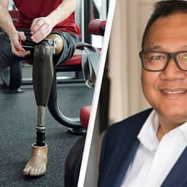 Australian Lawyer Asked By Government If His 'Amputation Is Permanent'