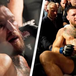 Conor McGregor Suffers Horrific Injury In Humiliating First Round Defeat At UFC 264