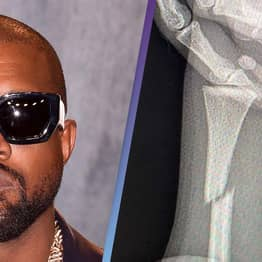 Kanye West Flooded With Support Following Rare Broken Bones Instagram Post