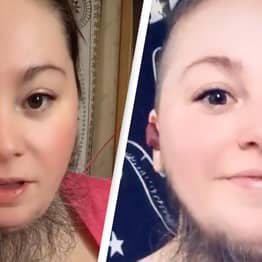 Bearded Lady On Onlyfans Says Men 'Love' Her Facial Hair