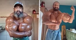 Bodybuilder Who Injects Oil Into Biceps Shares Transformation From 'Skinny' Young Boy