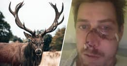 Runaway Deer Tore Hunter's Skin From His Face While Trying To Escape