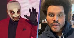 The Weeknd Finally Explains Why He Wore Face Bandages And Botox Prosthetics
