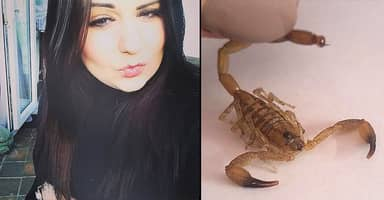 Girl Stung By Live Scorpion That Was Hidden In Tesco Bananas