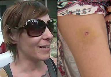 It Took Four Days Before This Woman Realised She'd Been Shot