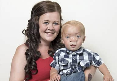 Toddler Born With His Brain Growing Into His Nose