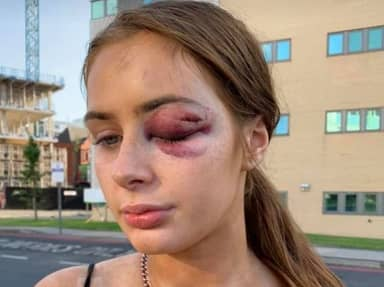 Teenager Knocked Unconscious After Telling Guy She Wasn't Interested