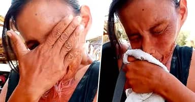 Mum In Tears Pleading For Help With Surgery To Detach Lip Burned Onto Chest
