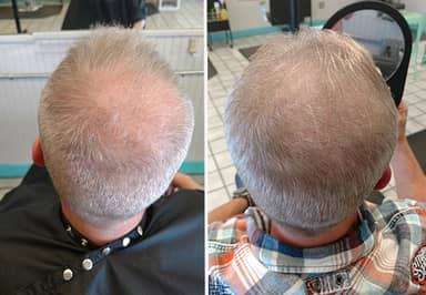 Man Claims Drinking Pee Made His Hair Grow Back