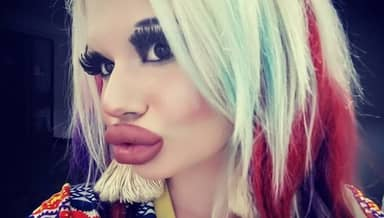 Woman Triples The Size Of Her Lips 'To Be More Fashionable'