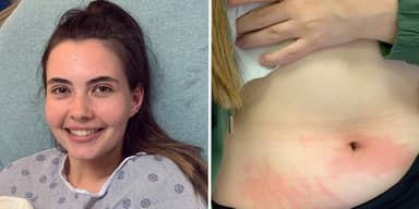 Student's Allergy To Water Means She Can Only Shower Twice A Month