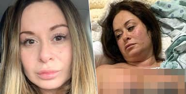 Woman Almost Dies After Botched Boob Job 'Rotted' Nipples