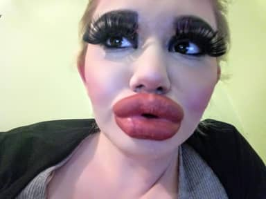 Woman Quadruples Her Lips To Have 'Biggest In The World'