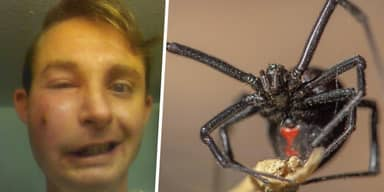Colorado Guy Bitten On Cheek By Black Widow Spider In His Sleep Nearly Blinded