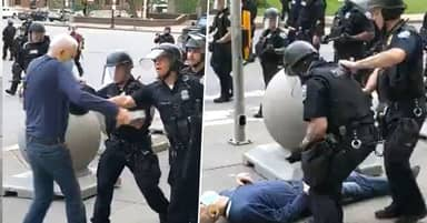 Elderly Protestor Pushed By Cops Has Fractured Skull And Can't Walk