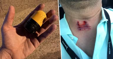 Protesters Are Sharing Pictures Of Rubber Bullets And The Damage They Do To People
