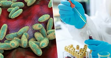 Colorado Confirms Human Case Of Plague For First Time In Five Years