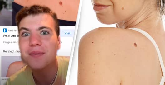Conspiracy Theory Suggests Birthmarks Indicate How You Died In Past Life