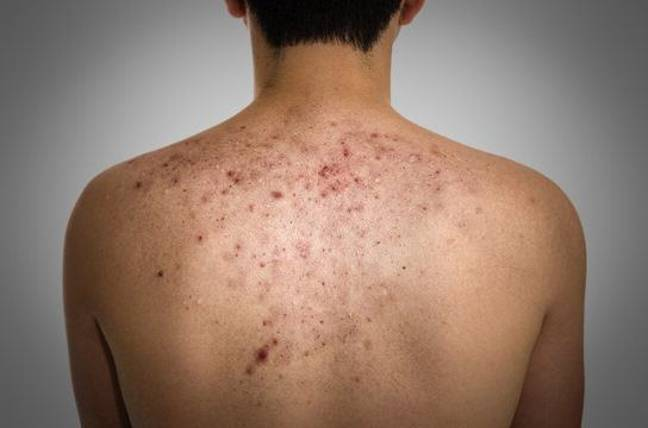 How-to-Get-Rid-of-Bacne-and-Bacne-Scars-Natural-Treatment