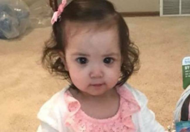 Girl has big eyes due to condition